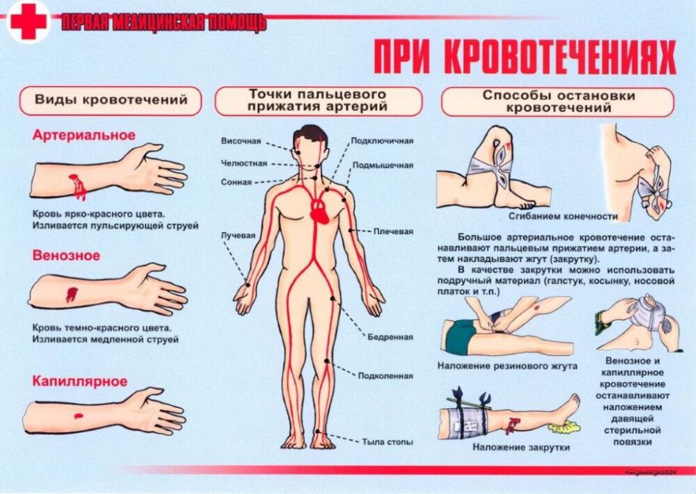 оказание первой медицинской помощи при дтп (главный ключ)